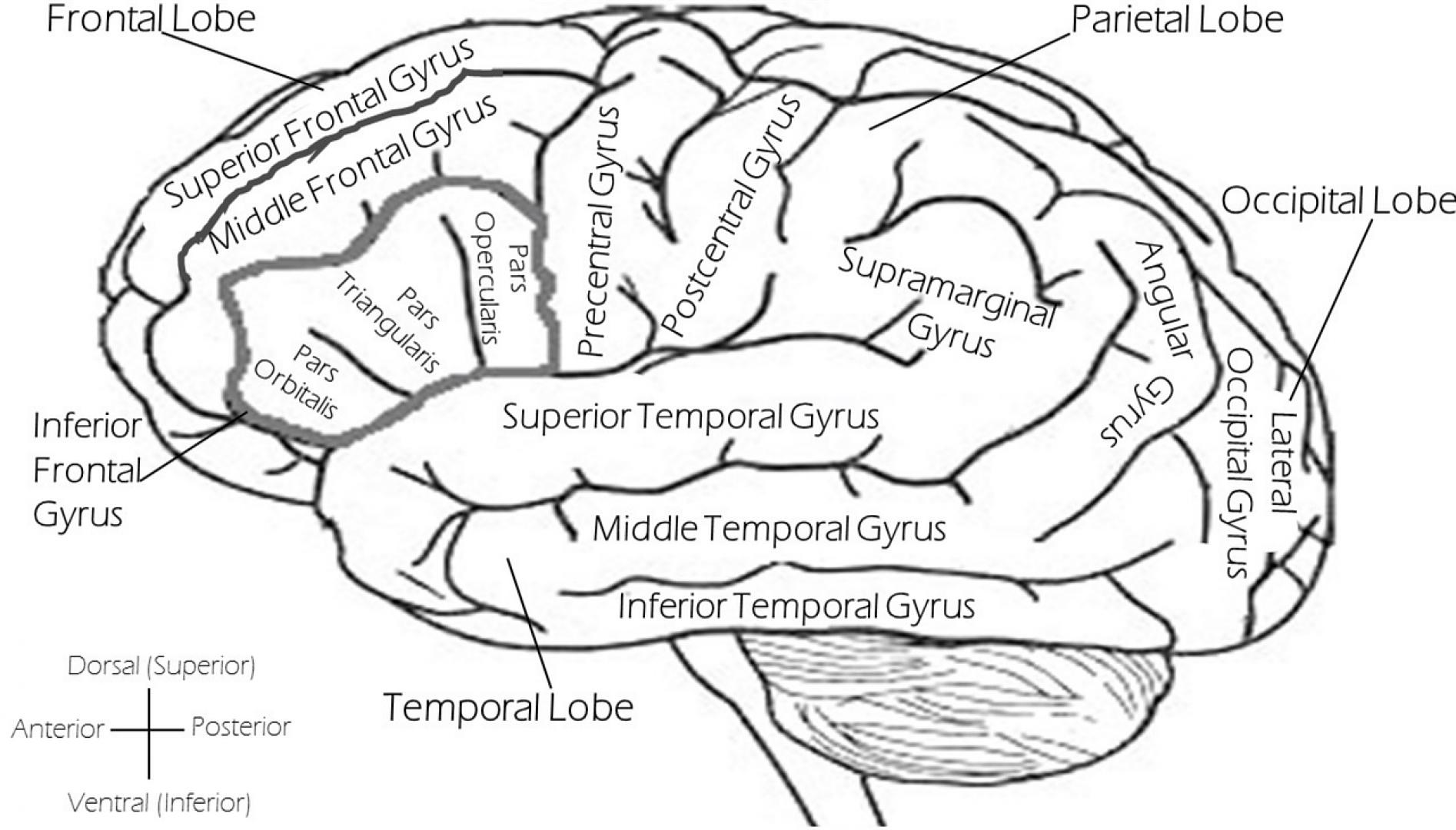 Cva In De Rechter Hersenhelft Geeft Uitval Links Hersenletsel